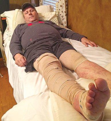 James Howard-wrapped leg.jpg